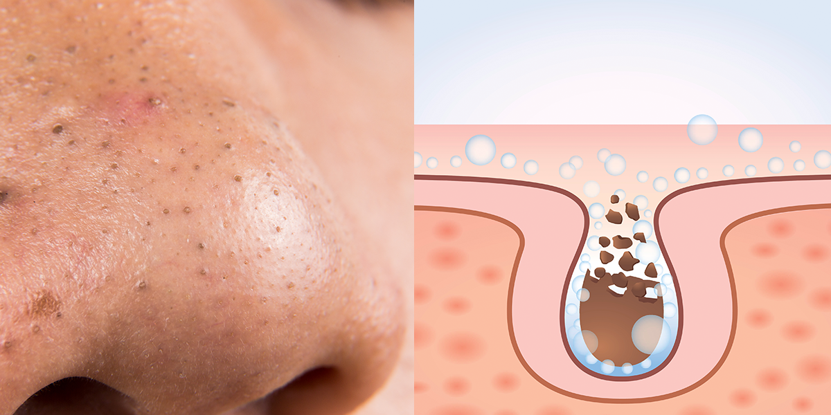 8 home remedies for large pores on nose
